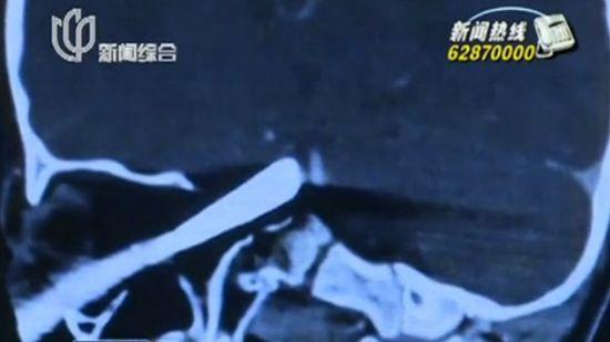 沪3岁男童被钢锥戳中头部 仍未脱危险