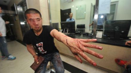 男子乘出租车遭老外殴打续:肇事者被限制出境