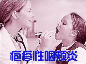 上海近期儿童疱疹性咽峡炎多发 孩子高热要小心!