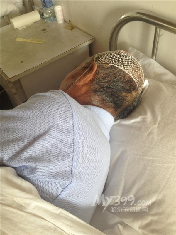 受伤老人在医院.高清图片