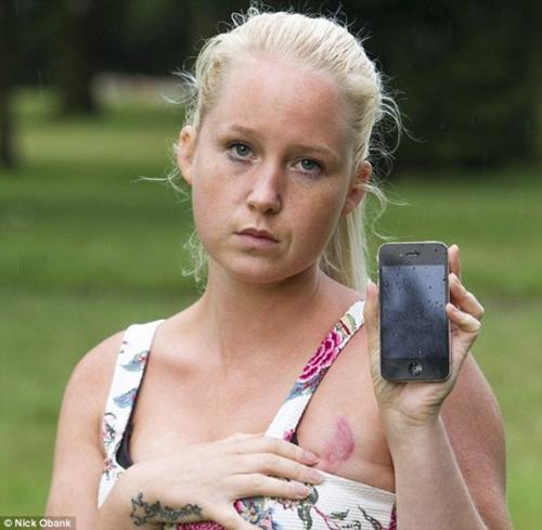 女子睡觉压到iPhone 胸部严重烫伤恐无法哺乳