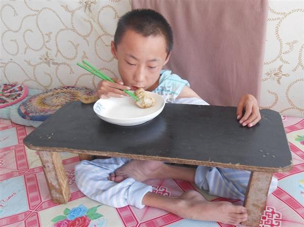 在为他特制的木桌上吃饭-渐冻人 于嘉辉梦想 解冻