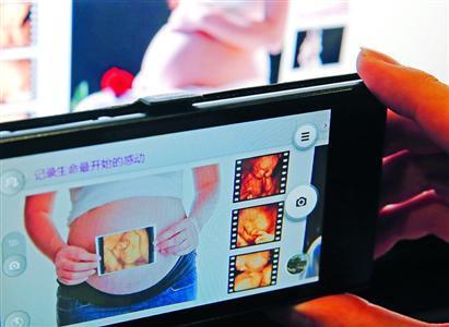准父母热衷拍胎儿写真 影楼用四维彩超安全合法吗?