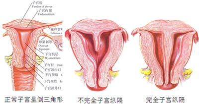 子宫纵隔 阻碍女人怀孕的一堵墙