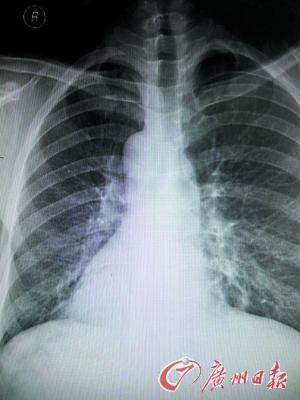 生的心脏阴影在右边.-东莞现镜面人发生几率百万分之一 不影响正图片
