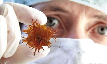 中医提醒癌症几种早期信号 预防癌症的方法