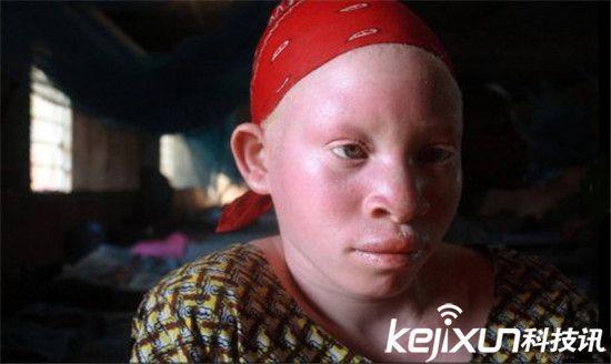 则在渔网中织入白化病人的头发,以期能有大的收获.-太恐怖 非洲