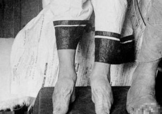 长期裹小脚已经变形了-揭秘三寸金莲背后被赋予的内涵
