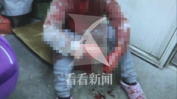 沪安汾路一小区68岁妻子砍伤丈夫 居民称两人常争吵