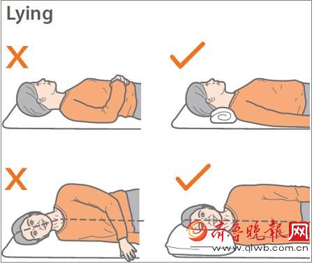 正确的睡觉姿势图-杨幂颈部前倾 原来娜扎 陈伟霆都是她的病友