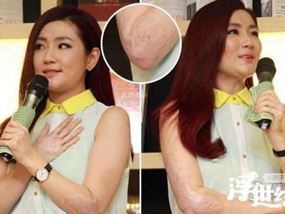 婴儿手指被头发缠住 表层皮肤被勒断险些截肢
