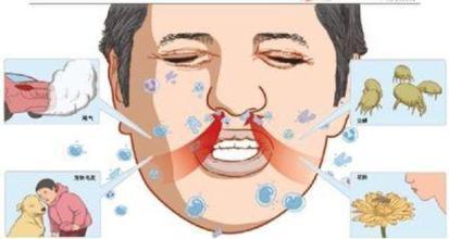 """春暖花开易发季节性过敏性鼻炎 眼痒头疼、鼻塞耳痛警惕""""花粉症""""来袭"""