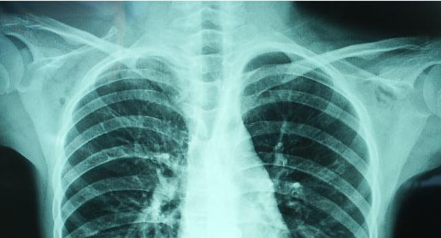 欧洲医学新发现:免疫细胞新发现有助于开发慢性肺炎疗法