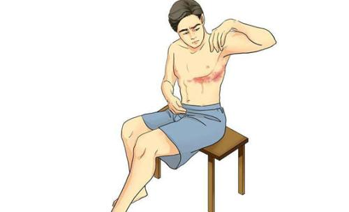 带状疱疹不仅是皮肤病,更是神经损伤性疾病   患病记得先治痛 避免留下神经痛